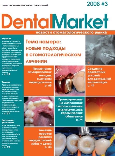 Банк имплантов Описание всех имплантатов продающихся в