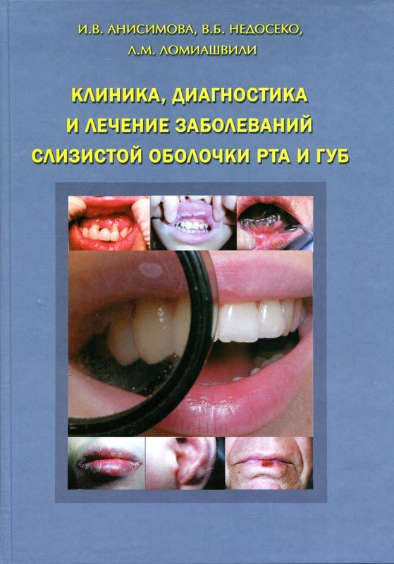 Скачать книгу заболевания слизистый оболочки полости рта