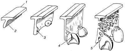 Графическое изображение формирования зачатков зубов: 1 — эпителий поло